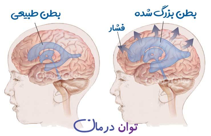 هیدروسفالی(آب آوردن مغز)