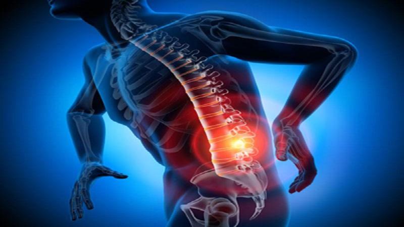 تمرین ورزشی برای کاهش درد سیاتیک