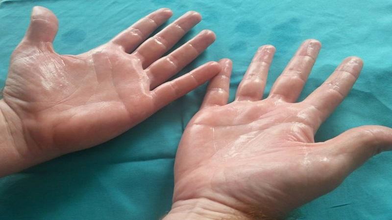هیپرهیدروز (عرق کردن بیش از حد) – Hyperhidrosis
